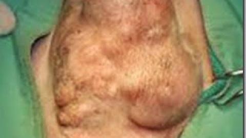 Il Tumore Mammario nella Cagna
