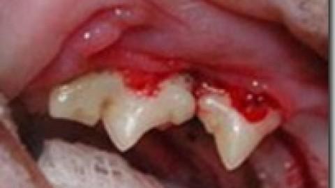 Riassorbimento Dentale Nel Gatto (FORL-Feline Odontoclastic Resorptive Lesions)