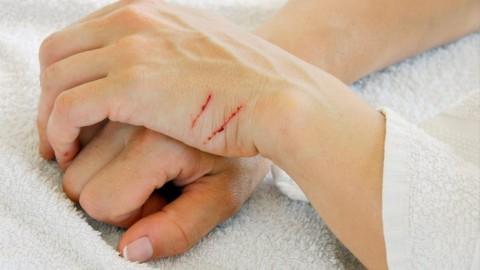 Attenti ai graffi dei gatti, il rischio può essere la bartonellosi – Ok Salute e Benessere