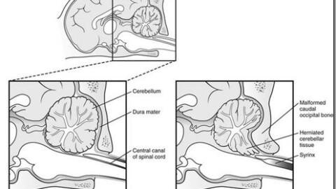 Sindrome di Chiari e Siringomielia nel Cane